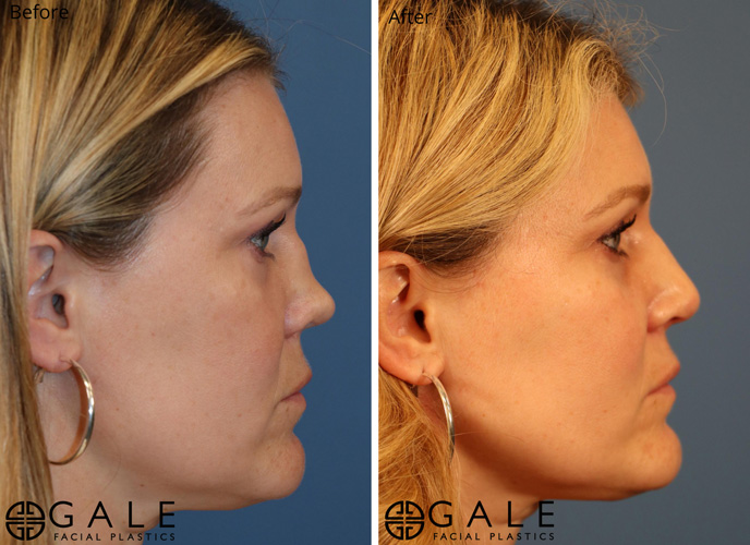 Before and After Rhinoplasty 2