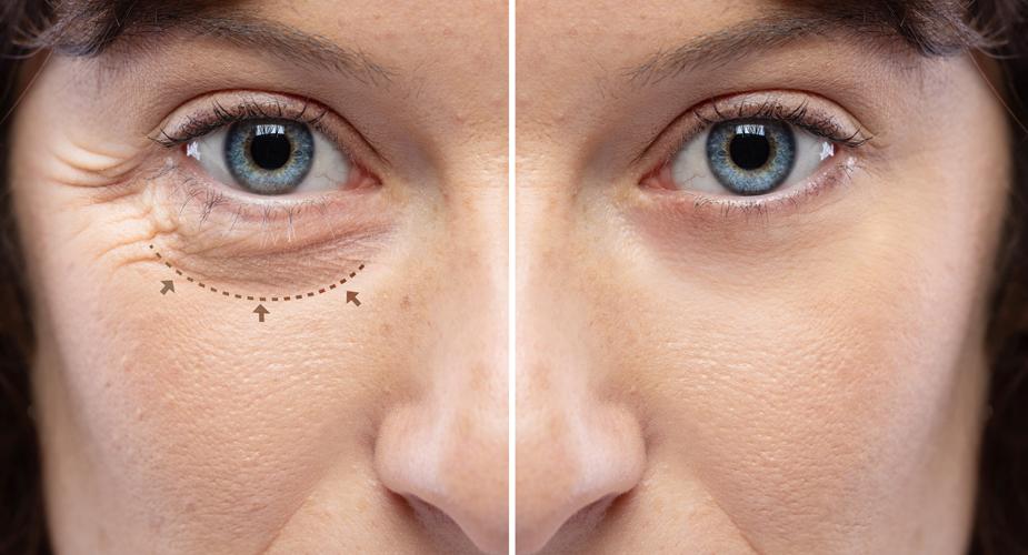 Dr. Gale Blepharoplasty Eyelid Surgery Utah